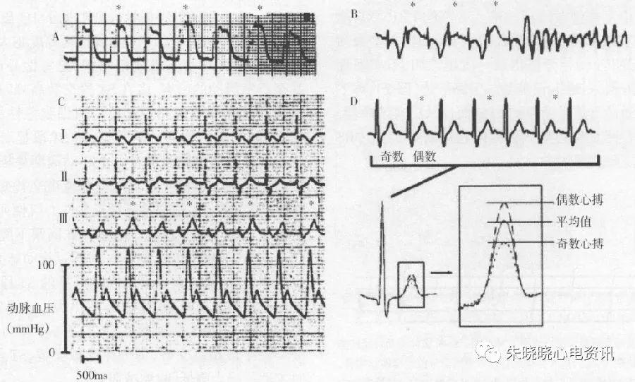 有图有真相:20种异常心电现象大盘点