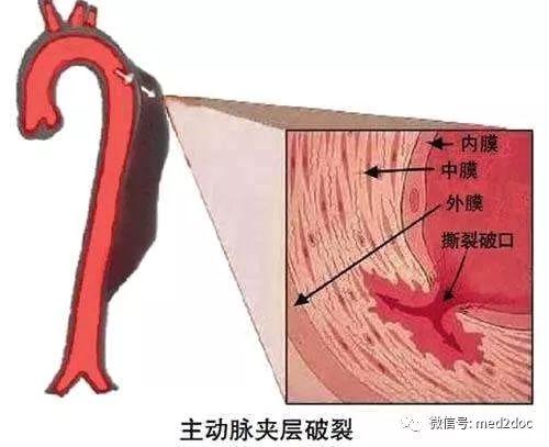 喉咙沙哑好不了,一查CT竟是这种病!真惊险...险些丧命